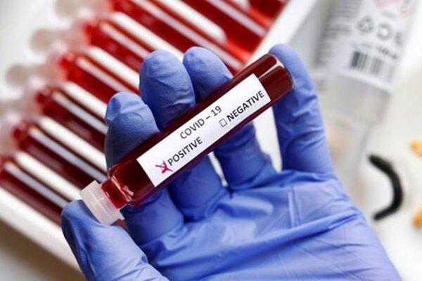 Aparecida do Rio Negro tem novo aumento de casos de coronavírus